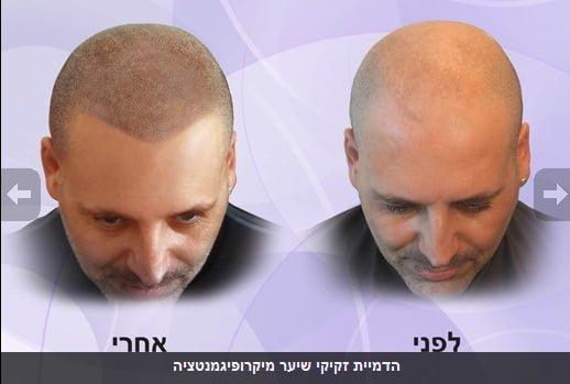 micropigmentare scalp barbat, tratament chelie, inceput de chelie